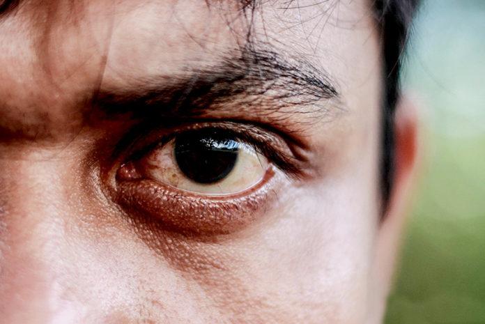 extreme-close-up